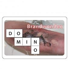 Digitaal Dominospel Brandwonden